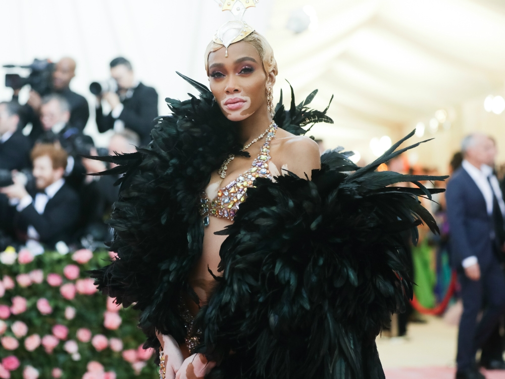Supermodel Winnie Harlow on Her Met Gala Look, Gracing the Pages of 'Sports Illustrated' & Her Favorite Miami Hot Spots