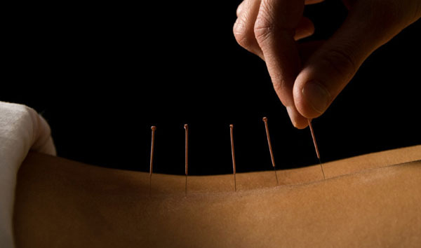 1 - All About Acupuncture